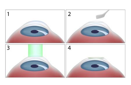 opération pkr - photokeratectomie réfractive