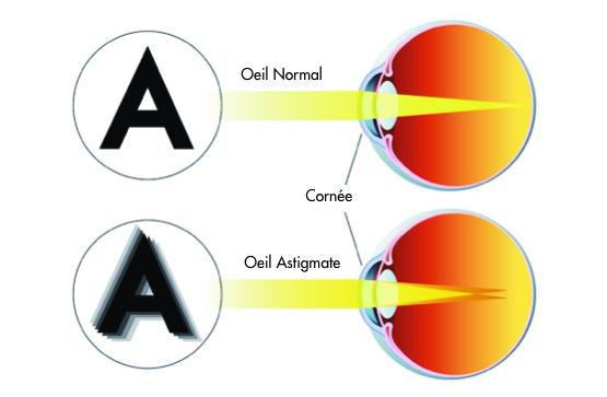 correction de l'astigmatisme - centre vision laser rabat