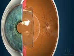 implant de lentilles intraoculaires phaques ou ICL