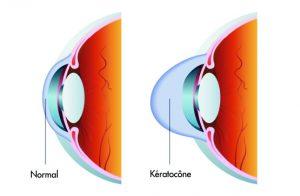 opération et traitements du kératocône rabat maroc