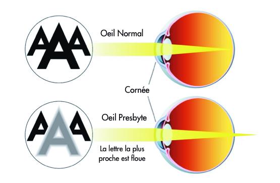 traitements de la presbytie - centre vision laser maroc