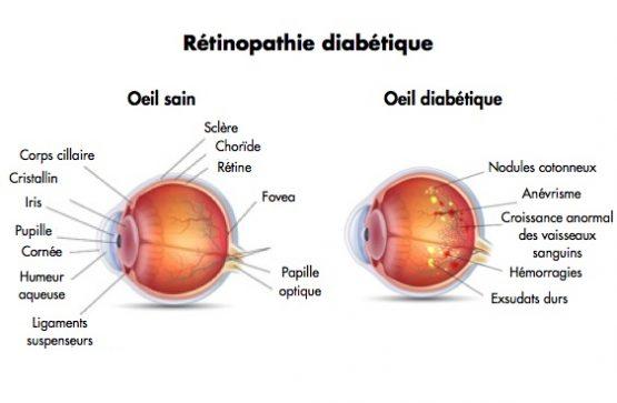 traiter la rétinopathie diabétique