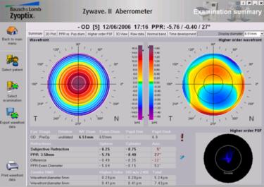 examen aberrométrique (aberrométrie) - centre vision laser maroc