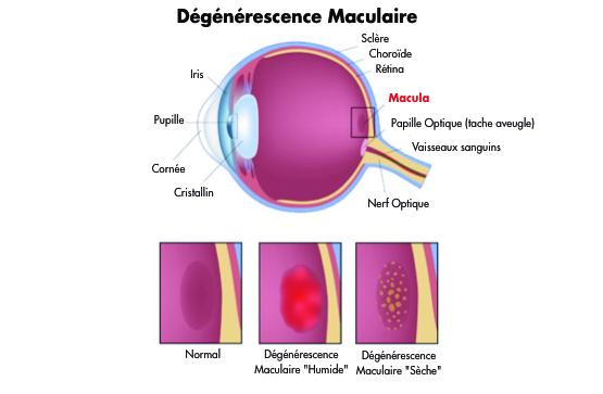 traiter la dégénérescence maculaire DMLA